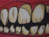 Poverty: Oral Care by David M. Bandler.  Copyright © 2010 David M. Bandler, All Rights Reserved.